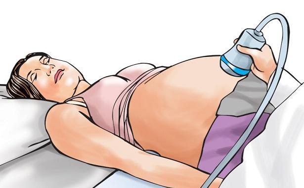 गर्भवती १७ वर्षीया बेचनीकुमारीको यसरी गरियो हत्या