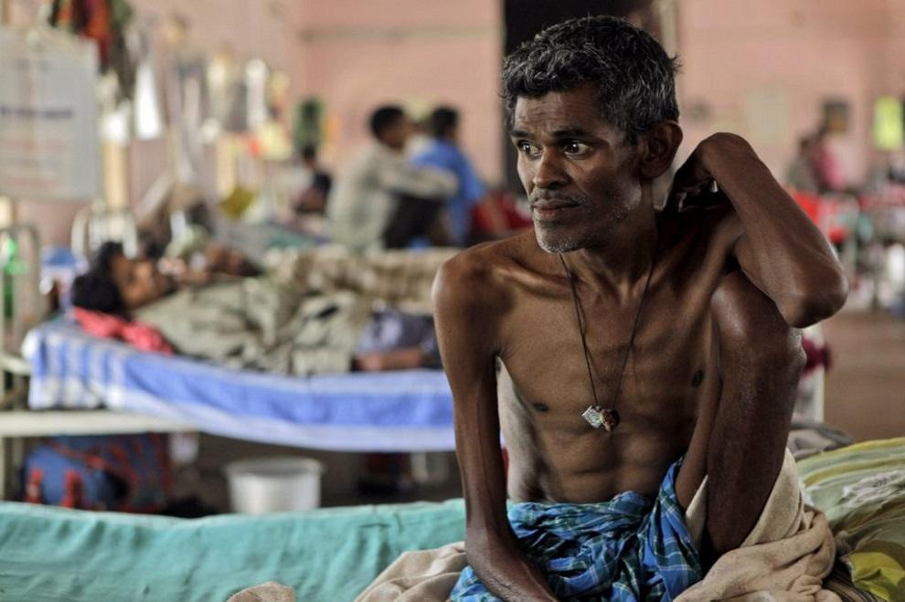 सन् २०१८ मा २१ लाखभन्दा बढी भारतीयमा क्षयरोग संक्रमण