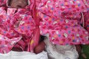 स्वस्थ्य चम्ल्याहा शिशुको जन्म, डा कार्की नेतृत्वको टोलीले गर्यो सफलतापूर्वक शल्यकृया